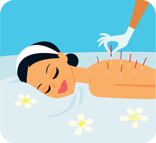 A Personal Account into Testing the Waters of Eastern Medicine and Using Acupuncture to Treat the Pain of Fibromyalgia