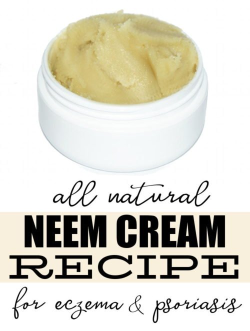 Natural Neem Cream Recipe for Eczema & Psoriasis! Not only is this homemade neem cream recipe easy to make, it's perfect for anyone suffering from just about any skin condition. While it works wonders as a natural remedy for eczema and psoriasis to help promote healing and offer relief, it can also be used to fight cold sores, athletes foot, acne and even scabies!