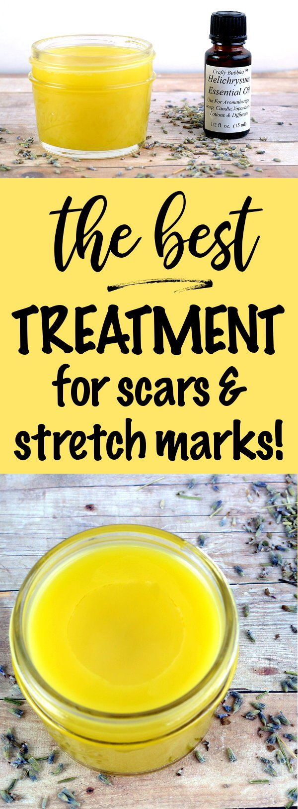 Best Scar And Stretch Mark Treatment You Can Make At Home