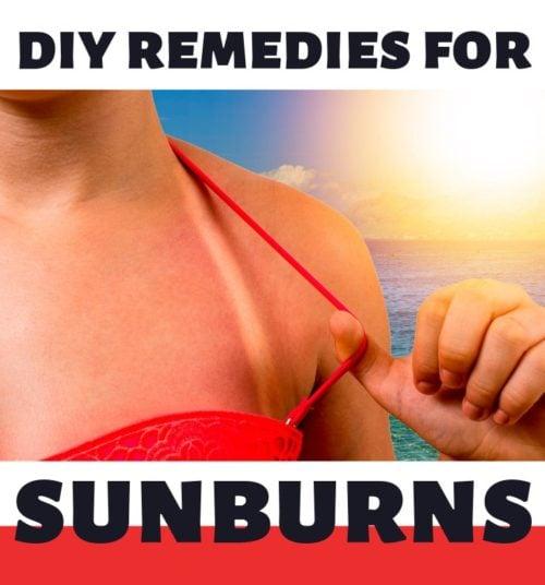 Home Remedies for Sunburns